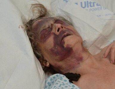 Londyn. 90-latka w ciężkim stanie trafiła do szpitala. Została brutalnie...