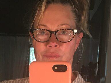 Melanie Griffith zmaga się z rakiem. Pokazała zdjęcie po zabiegu i...