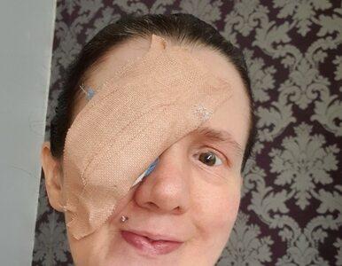 Wakacyjny dramat turystki. Straciła oko, kiedy wycierała ręcznikiem...