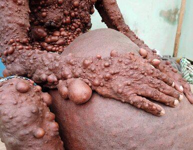 Cierpi na nietypowe schorzenie. Jego skórę pokrywa mnóstwo bąbli